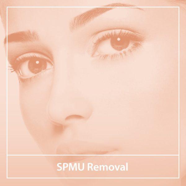 SPMU Removal